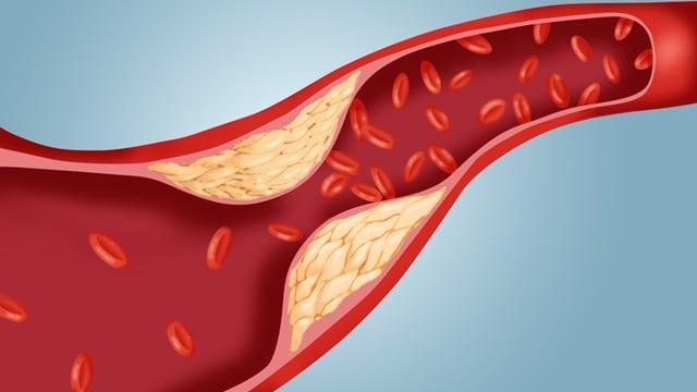 el-colesterol